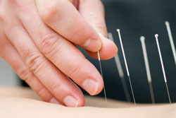 adelaide-crows-sports-medicine-dry-needling-acupuncture