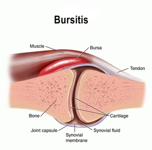 Image result for bursitis